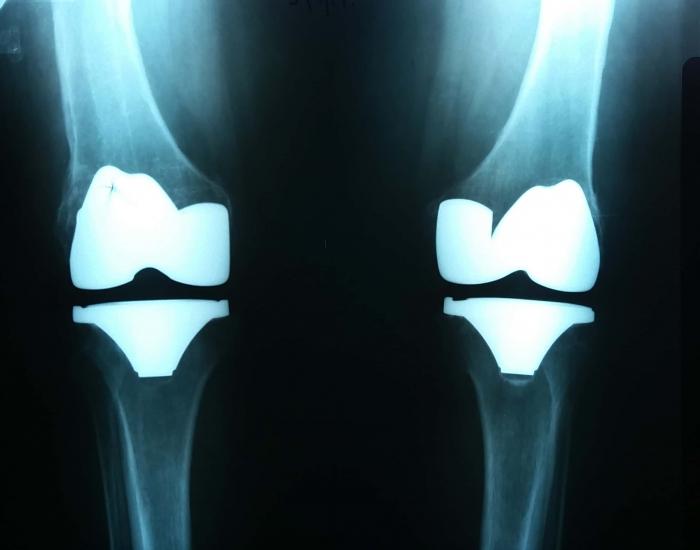 Ολική Αρθροπλαστική και στα 2 γόνατα σε μία χειρουργική επέμβαση