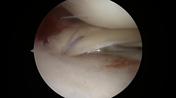 Αρθροσκόπηση γόνατος και καθήλωση της οπίσθιας ρίζας του έσω μηνίσκου του γόνατος