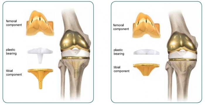 Βάδιση ασθενούς με Ολική Αρθροπλαστική Γόνατος λόγω αρθρίτιδας με μεγάλη παραμόρφωση σε βλαισότητα