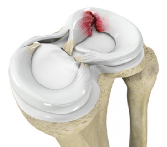 Αρθροσκοπική αποκατάσταση ρήξης μηνίσκου και αρθρικού χόνδρου γόνατος