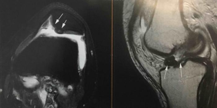 Αρθροσκοπική αφαίρεση ελεύθερου χόνδρινου τεμαχίου γόνατος