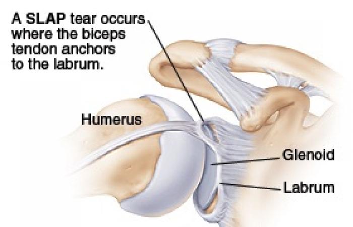 Αρθροσκοπική αντιμετώπιση ρήξης του άνω επιχειλίου χόνδρου της Ωμογλήνης,  SLAP lesion